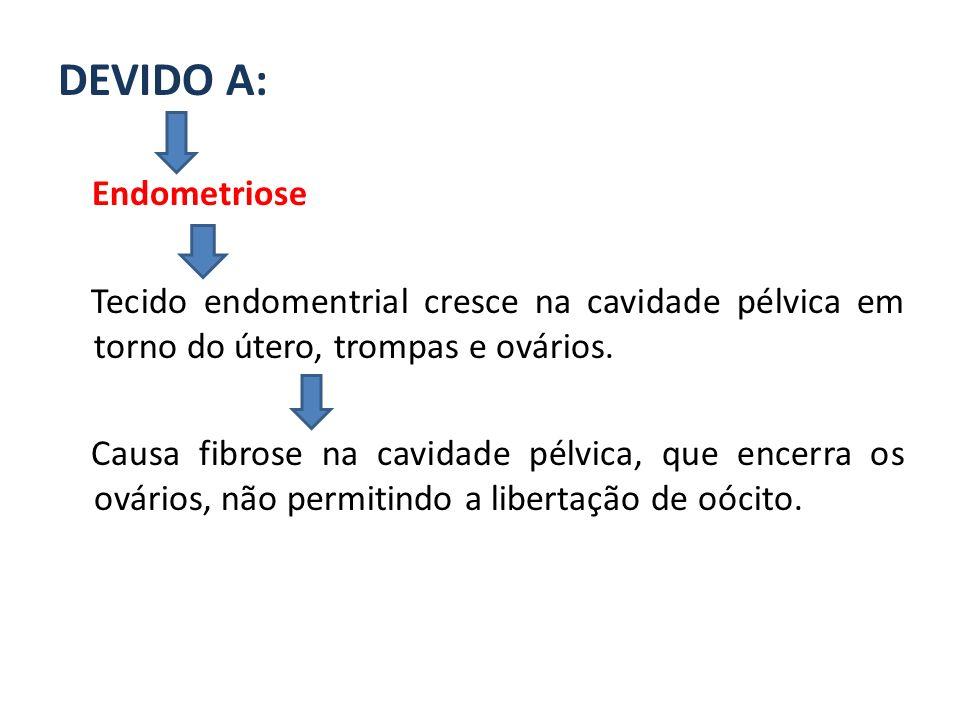 DEVIDO A: Endometriose Tecido endomentrial cresce na cavidade pélvica em torno do útero, trompas e ovários. Causa fibrose na cavidade pélvica, que enc
