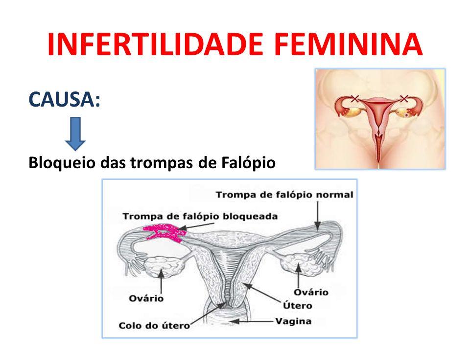INFERTILIDADE FEMININA CAUSA: Bloqueio das trompas de Falópio