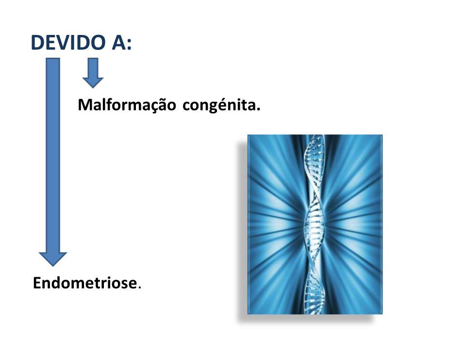 DEVIDO A: Malformação congénita. Endometriose.