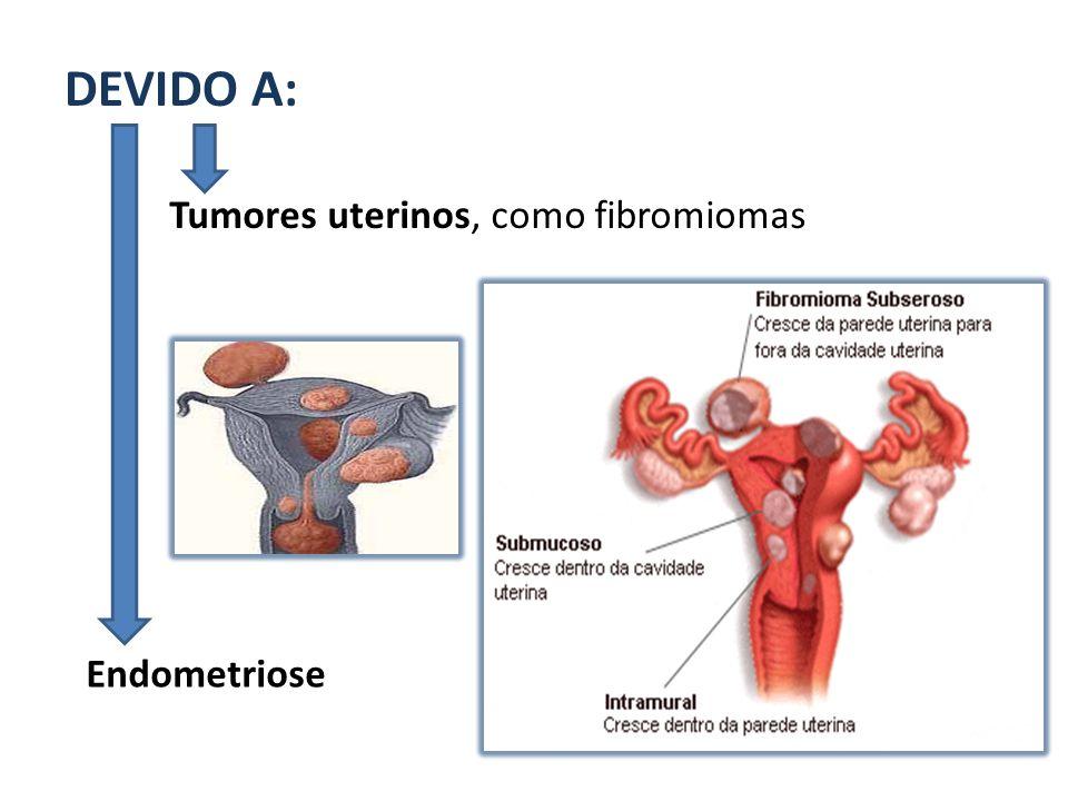 DEVIDO A: Tumores uterinos, como fibromiomas Endometriose