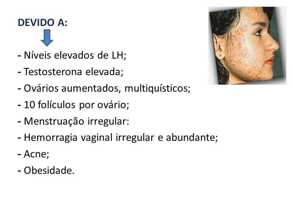 DEVIDO A: - Níveis elevados de LH; - Testosterona elevada; - Ovários aumentados, multiquísticos; - 10 folículos por ovário; - Menstruação irregular: -