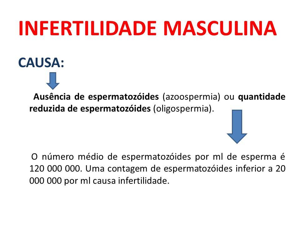 INFERTILIDADE MASCULINA CAUSA: Ausência de espermatozóides (azoospermia) ou quantidade reduzida de espermatozóides (oligospermia). O número médio de e