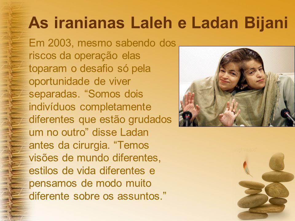 As iranianas Laleh e Ladan Bijani Em 2003, mesmo sabendo dos riscos da operação elas toparam o desafio só pela oportunidade de viver separadas.