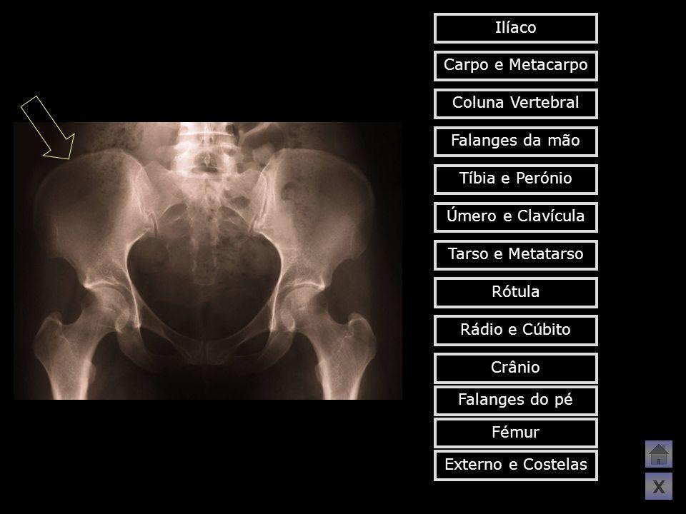 Carpo e Metacarpo Tíbia e Perónio Falanges da mão Coluna Vertebral Tarso e Metatarso Úmero e Clavícula Crânio Rádio e Cúbito Rótula Fémur Falanges do
