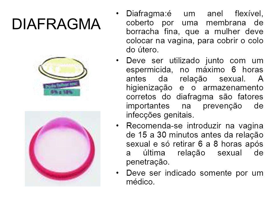 DIAFRAGMA Diafragma:é um anel flexível, coberto por uma membrana de borracha fina, que a mulher deve colocar na vagina, para cobrir o colo do útero. D