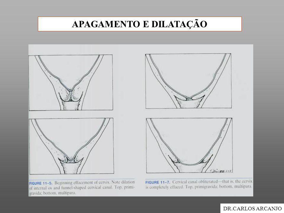 APAGAMENTO E DILATAÇÃO DR.CARLOS ARCANJO