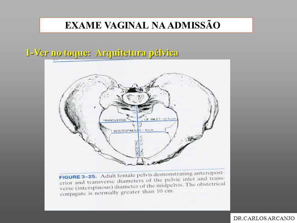 EXAME VAGINAL NA ADMISSÃO DR.CARLOS ARCANJO 1-Ver no toque: Arquitetura pélvica
