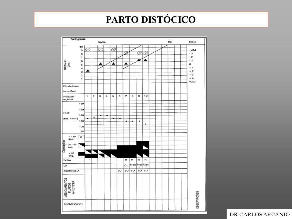 PARTO DISTÓCICO DR.CARLOS ARCANJO