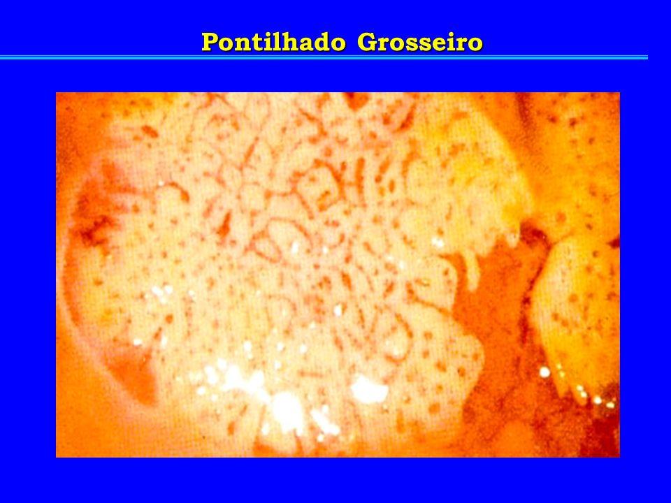 Pontilhado Grosseiro