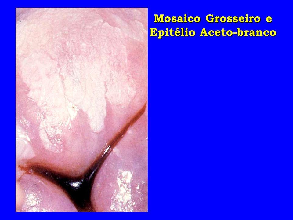 Mosaico Grosseiro e Epitélio Aceto-branco