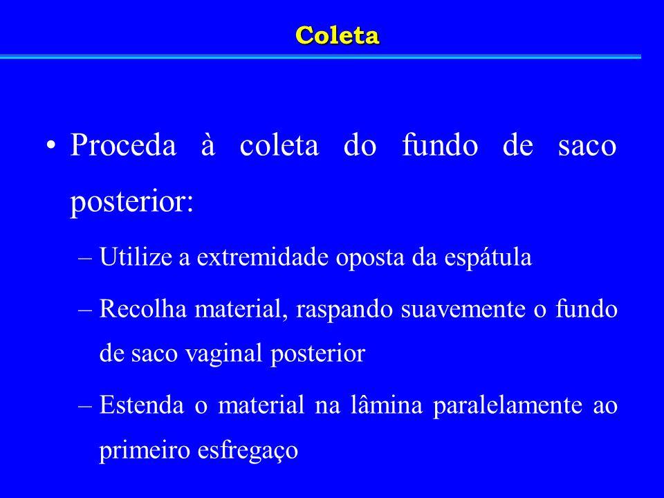 Coleta Proceda à coleta do canal endocervical: –Utilize a escova de coleta endocervical –Recolha o material introduzindo a escova delicadamente no canal endocervical, girando-a 360º