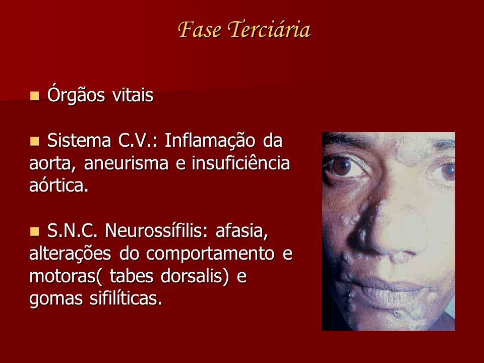 Fase Terciária Órgãos vitais Órgãos vitais Sistema C.V.: Inflamação da Sistema C.V.: Inflamação da aorta, aneurisma e insuficiência aórtica. S.N.C. Ne