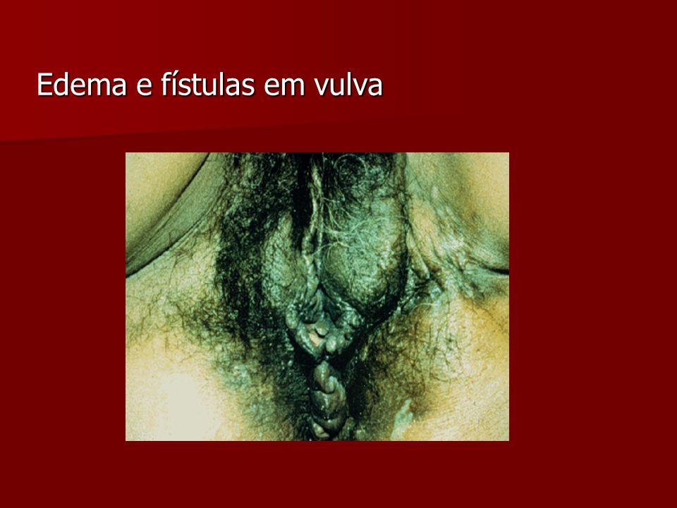 Complicações/Conseqüências Elefantíase do pênis, escroto, vulva.
