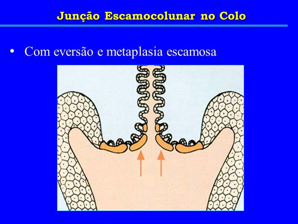 Junção Escamocolunar no Colo Com eversão e metaplasia escamosa