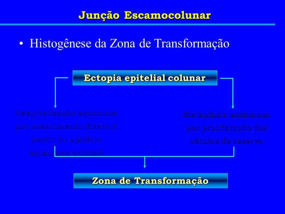 Histogênese da Zona de Transformação Reepitelização escamosa por crescimento direto a partir do epitélio escamoso original Metaplasia escamosa por pro