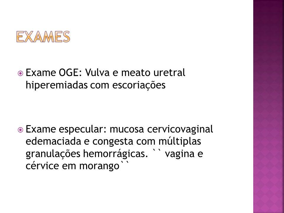Exame OGE: Vulva e meato uretral hiperemiadas com escoriações Exame especular: mucosa cervicovaginal edemaciada e congesta com múltiplas granulações h