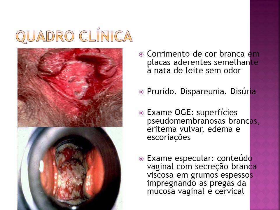 Exame microscópico do conteúdo vaginal: hinfas ou micélios birrefringentes e esporos de levedura Método papanicolaou