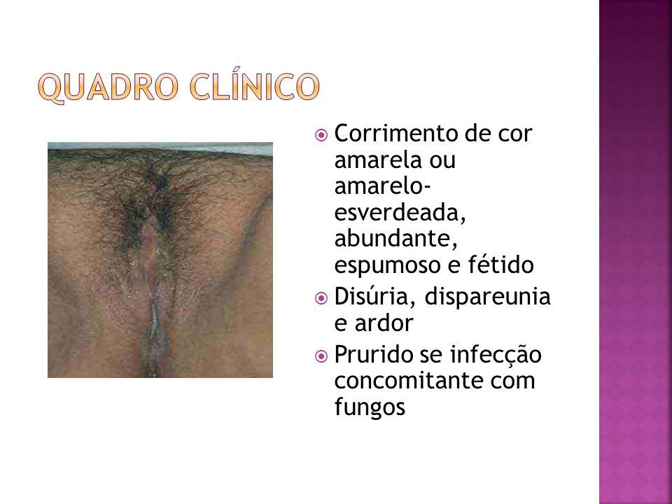Exame OGE: Vulva e meato uretral hiperemiadas com escoriações Exame especular: mucosa cervicovaginal edemaciada e congesta com múltiplas granulações hemorrágicas.