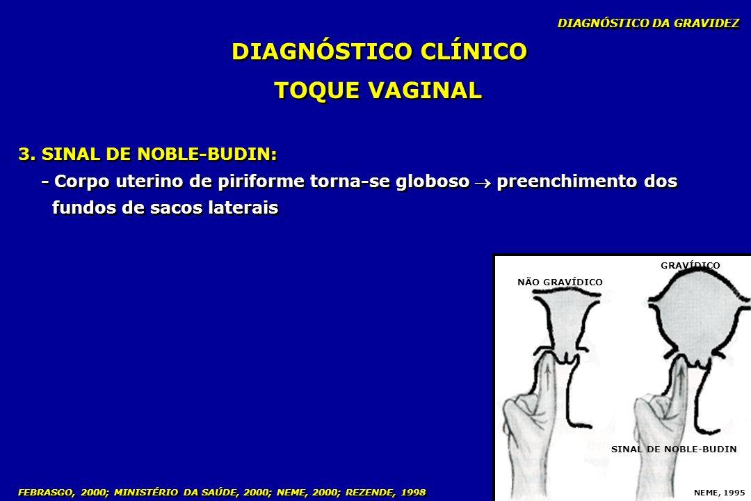 3. SINAL DE NOBLE-BUDIN: - Corpo uterino de piriforme torna-se globoso preenchimento dos fundos de sacos laterais 3. SINAL DE NOBLE-BUDIN: - Corpo ute