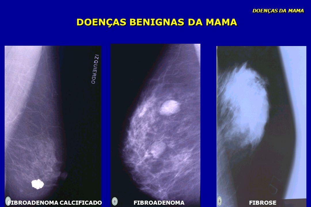 DOENÇAS BENIGNAS DA MAMA DOENÇAS DA MAMA FIBROADENOMA CALCIFICADOFIBROSEFIBROADENOMA