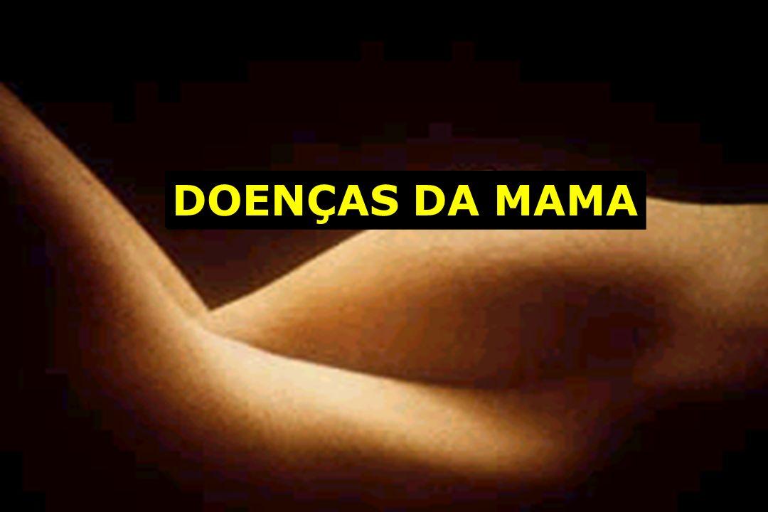 DOENÇAS DA MAMA