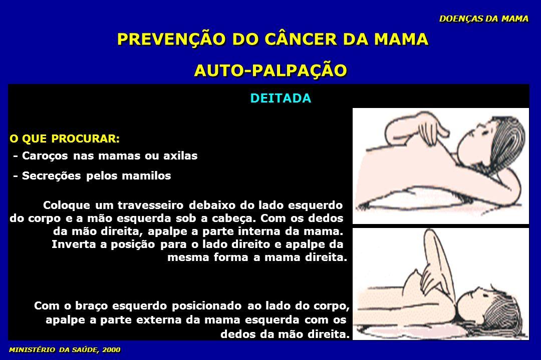 DOENÇAS DA MAMA MINISTÉRIO DA SAÚDE, 2000 PREVENÇÃO DO CÂNCER DA MAMA AUTO-PALPAÇÃO DEITADA O QUE PROCURAR O QUE PROCURAR: - Caroços nas mamas ou axil