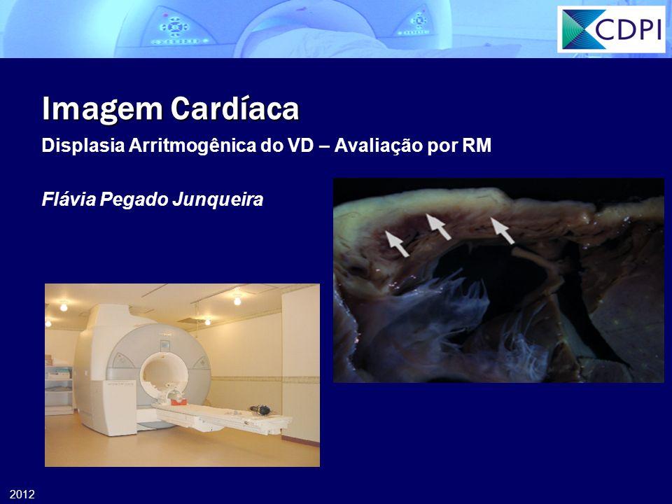 2012 Imagem Cardíaca Displasia Arritmogênica do VD – Avaliação por RM Flávia Pegado Junqueira