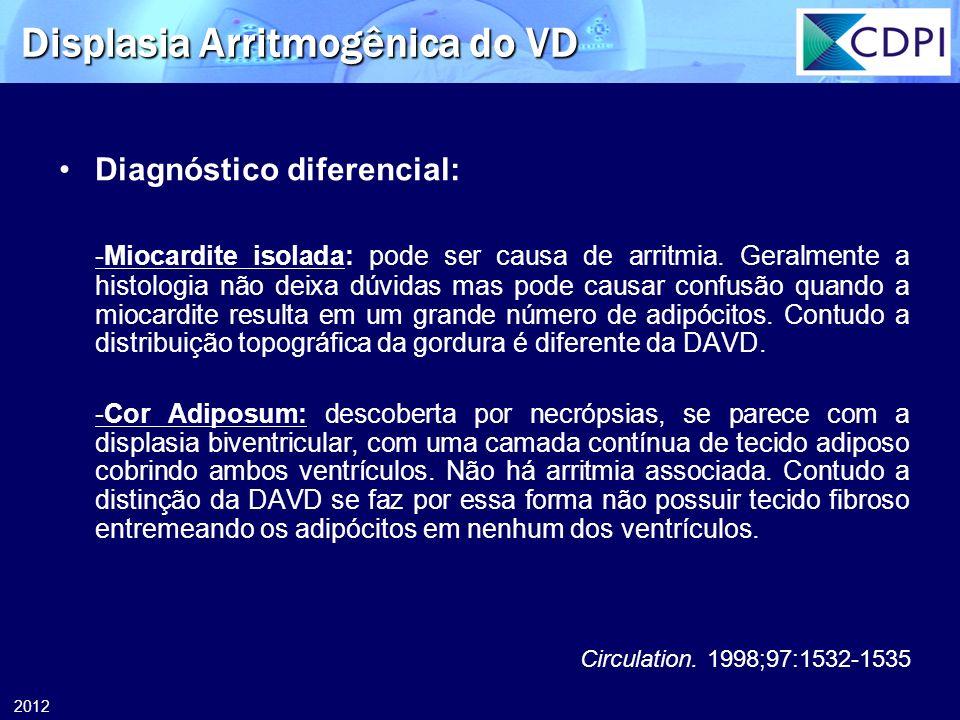 2012 Displasia Arritmogênica do VD Diagnóstico diferencial: -Miocardite isolada: pode ser causa de arritmia. Geralmente a histologia não deixa dúvidas