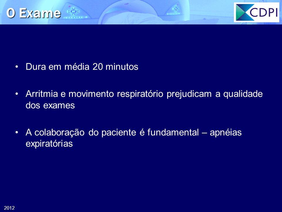 2012 O Exame Dura em média 20 minutos Arritmia e movimento respiratório prejudicam a qualidade dos exames A colaboração do paciente é fundamental – ap