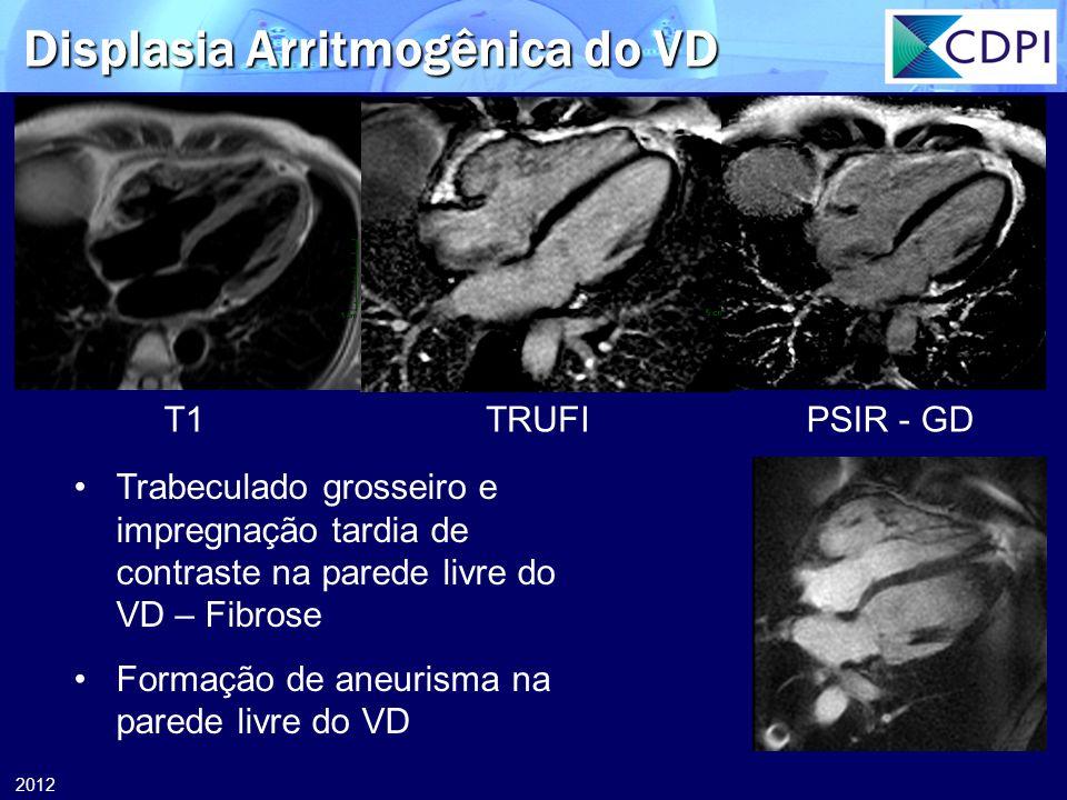 2012 T1TRUFIPSIR - GD Trabeculado grosseiro e impregnação tardia de contraste na parede livre do VD – Fibrose Formação de aneurisma na parede livre do