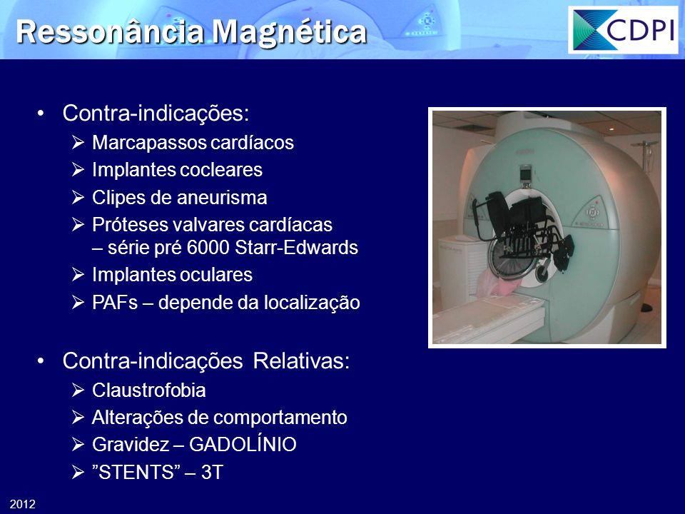 2012 Ressonância Magnética Contra-indicações: Marcapassos cardíacos Implantes cocleares Clipes de aneurisma Próteses valvares cardíacas – série pré 60