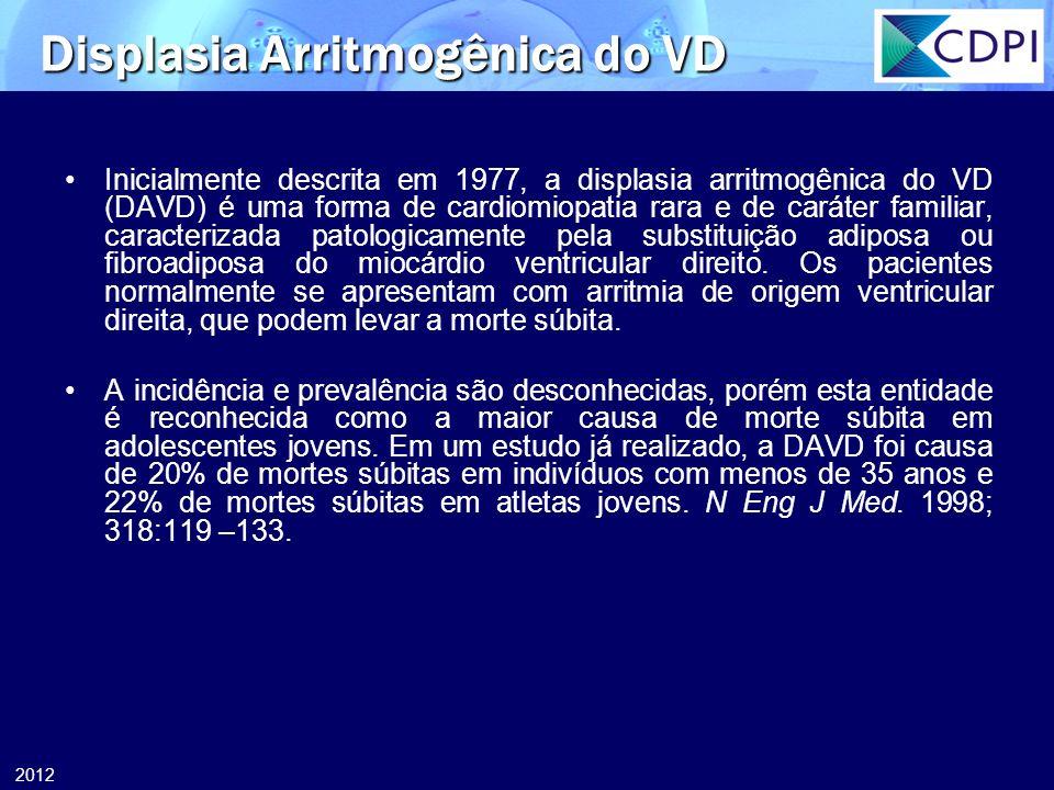 2012 Inicialmente descrita em 1977, a displasia arritmogênica do VD (DAVD) é uma forma de cardiomiopatia rara e de caráter familiar, caracterizada pat