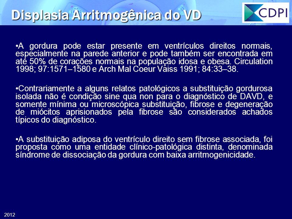 2012 A gordura pode estar presente em ventrículos direitos normais, especialmente na parede anterior e pode também ser encontrada em até 50% de coraçõ