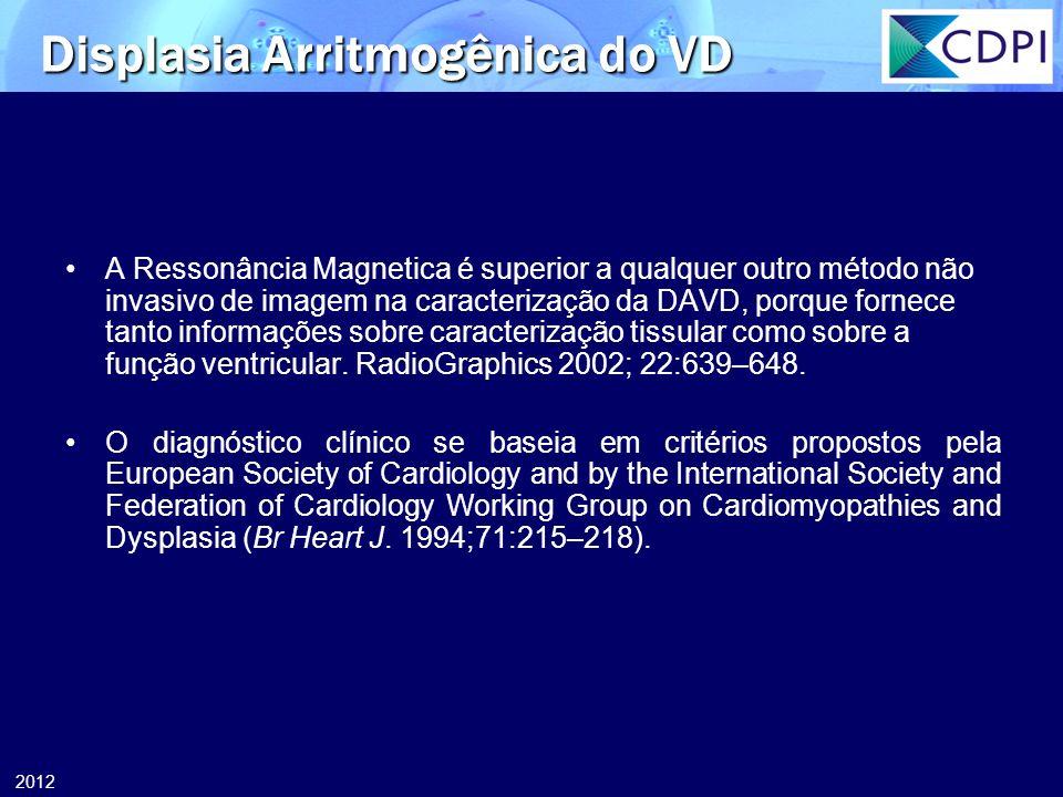 2012 Displasia Arritmogênica do VD Os critérios diagnósticos foram revistos em 2010 (2010 Task Force Criteria) O diagnóstico definitivo é feito com 2 critérios major ou 1 major e dois minor.
