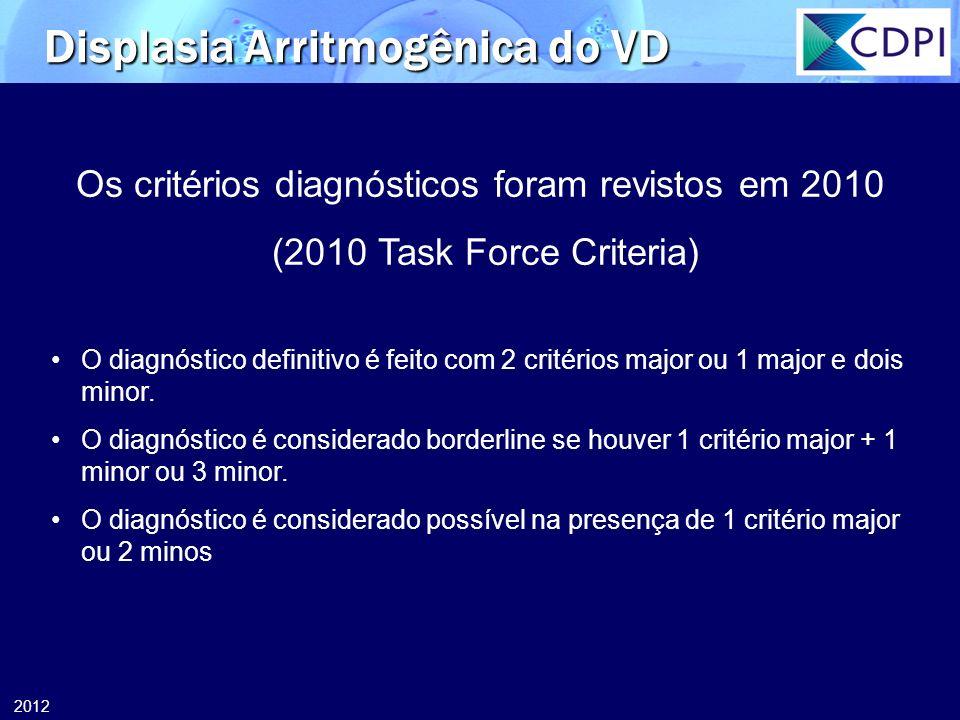 2012 Displasia Arritmogênica do VD Os critérios diagnósticos foram revistos em 2010 (2010 Task Force Criteria) O diagnóstico definitivo é feito com 2