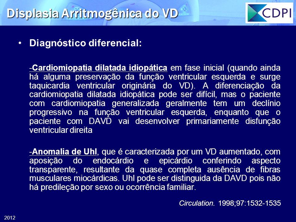 2012 Displasia Arritmogênica do VD Diagnóstico diferencial: -Cardiomiopatia dilatada idiopática em fase inicial (quando ainda há alguma preservação da