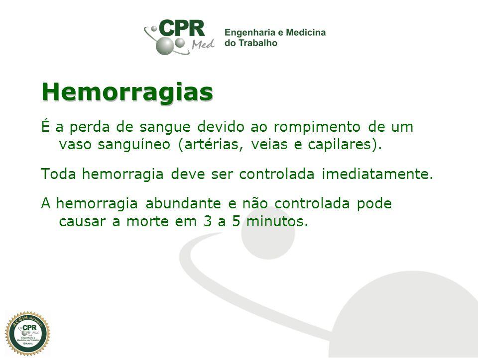 Hemorragias É a perda de sangue devido ao rompimento de um vaso sanguíneo (artérias, veias e capilares). Toda hemorragia deve ser controlada imediatam