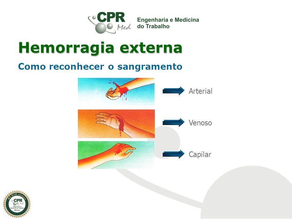 Hemorragia externa Como reconhecer o sangramento Arterial Venoso Capilar