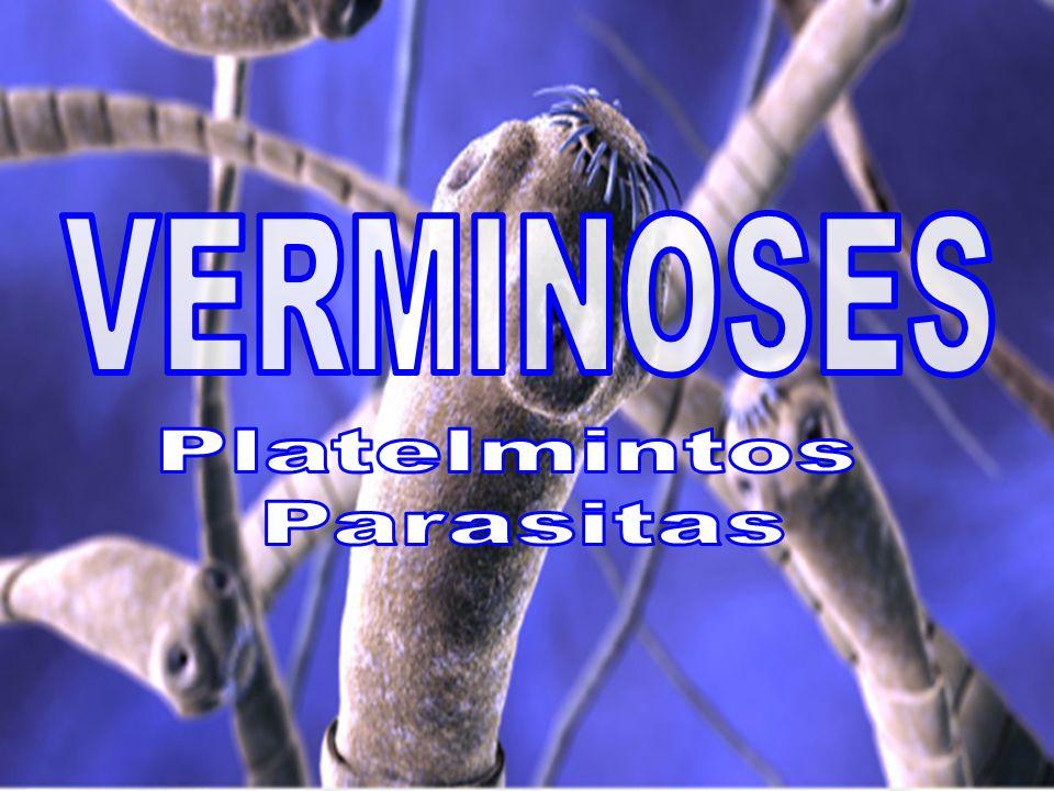 Barriga dágua Agente etiológico Trematódeo, Schistosoma mansoni Penetração ativa da larva cercária através da pele Vetor Caramujos do gênero Biomphalaria