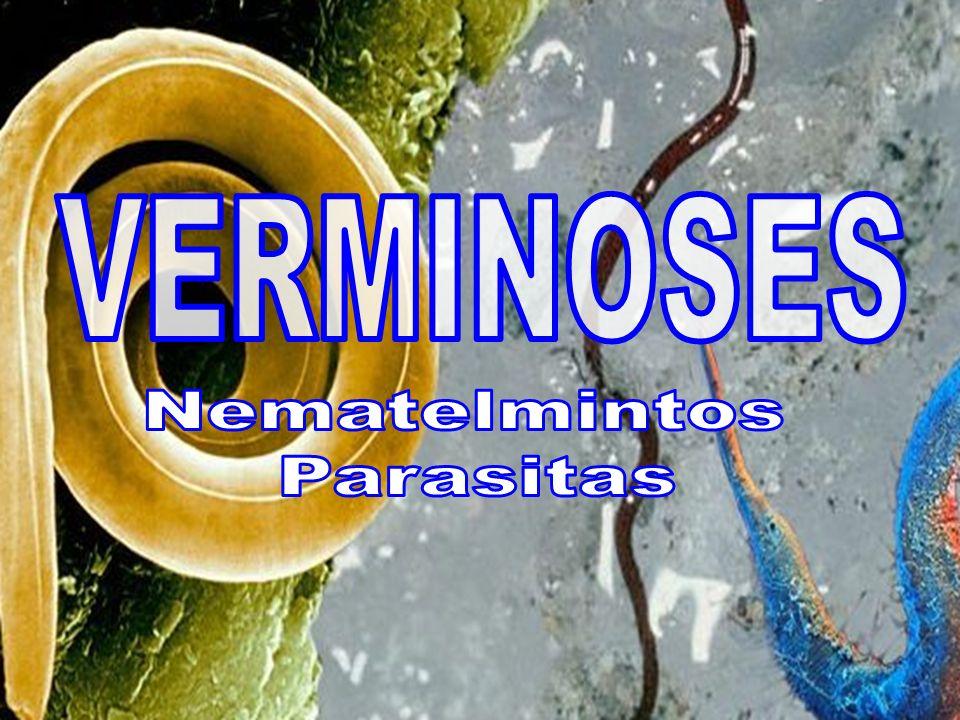 FASE INTESTINAL Dor abdominal FASE PULMONAR ( Mais branda que a do áscaris ) Febre Tosse Falta de ar Nausea Hemorragias Anemia