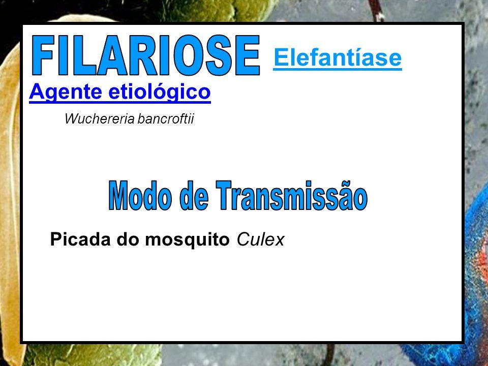 Elefantíase Agente etiológico Wuchereria bancroftii Picada do mosquito Culex