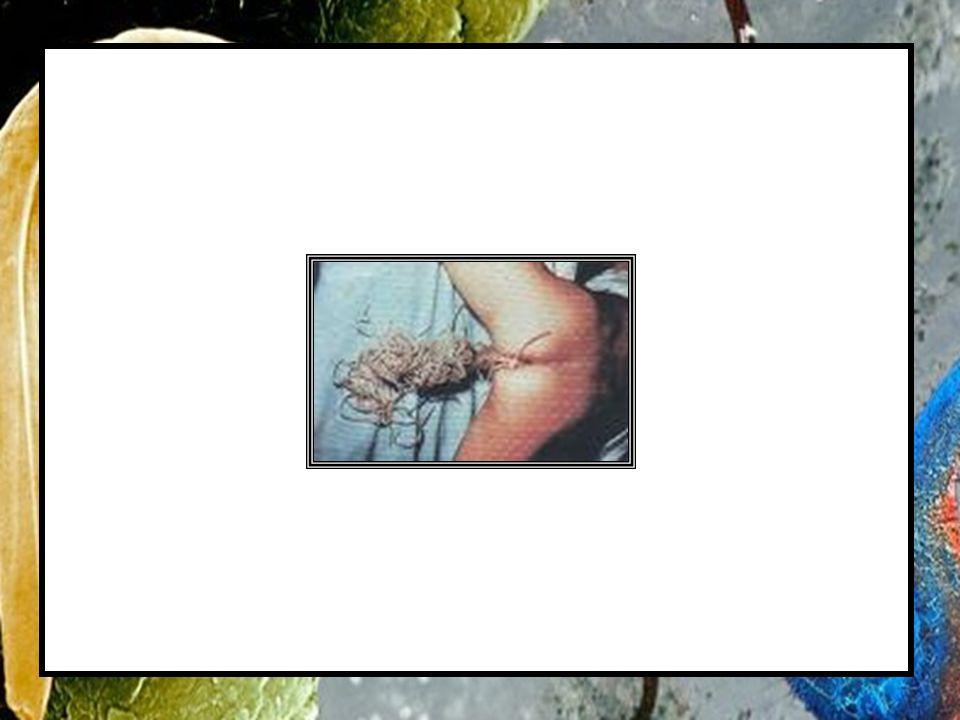 Ciclo Reprodutivo 1 2 3 1 2 3 Ingestão de ovos embrionados do parasita Infestação Pulmonar (pelo sangue) Infestação Intestinal (Por Deglutição) 4 O parasita libera ovos com as fezes humanas 4