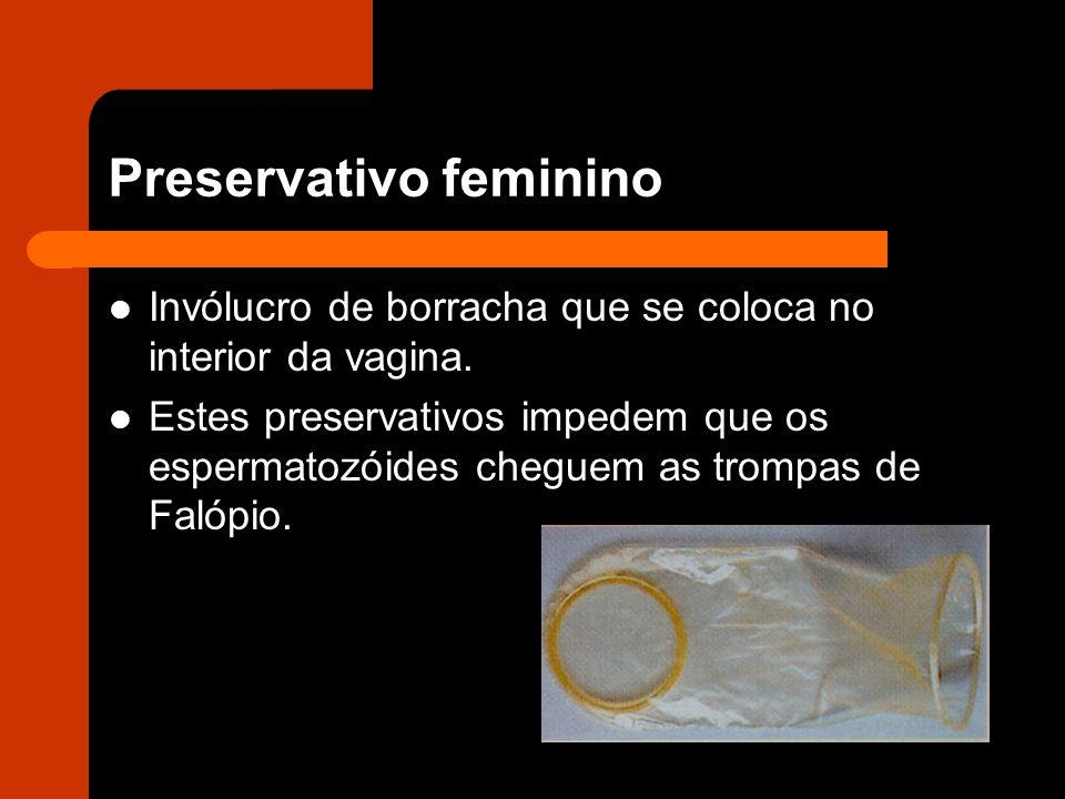 Preservativo feminino Invólucro de borracha que se coloca no interior da vagina.
