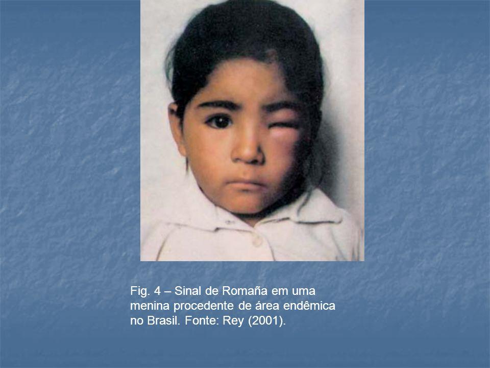 Fig. 4 – Sinal de Romaña em uma menina procedente de área endêmica no Brasil. Fonte: Rey (2001).