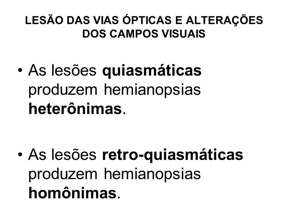 LESÃO DAS VIAS ÓPTICAS E ALTERAÇÕES DOS CAMPOS VISUAIS As lesões quiasmáticas produzem hemianopsias heterônimas. As lesões retro-quiasmáticas produzem