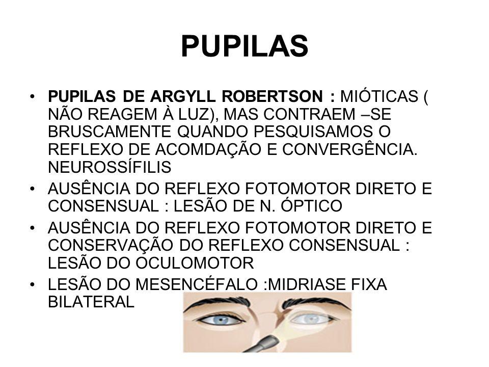 PUPILAS PUPILAS DE ARGYLL ROBERTSON : MIÓTICAS ( NÃO REAGEM À LUZ), MAS CONTRAEM –SE BRUSCAMENTE QUANDO PESQUISAMOS O REFLEXO DE ACOMDAÇÃO E CONVERGÊN