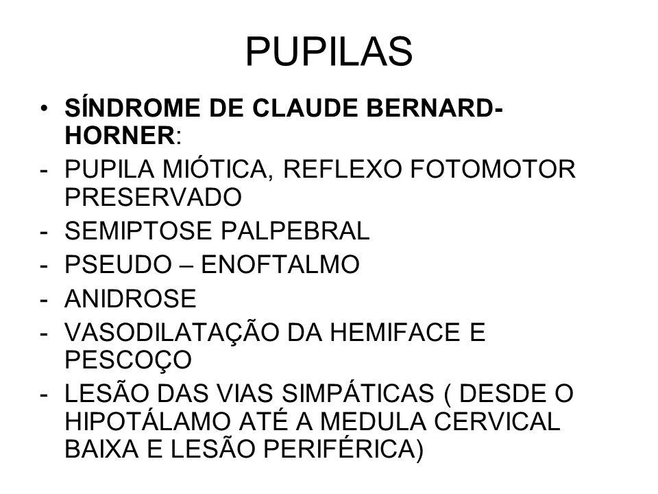 PUPILAS SÍNDROME DE CLAUDE BERNARD- HORNER: -PUPILA MIÓTICA, REFLEXO FOTOMOTOR PRESERVADO -SEMIPTOSE PALPEBRAL -PSEUDO – ENOFTALMO -ANIDROSE -VASODILA