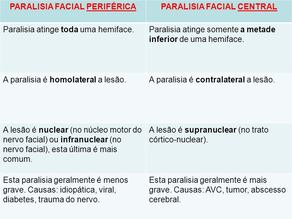 PARALISIA FACIAL PERIFÉRICAPARALISIA FACIAL CENTRAL Paralisia atinge toda uma hemiface.Paralisia atinge somente a metade inferior de uma hemiface. A p