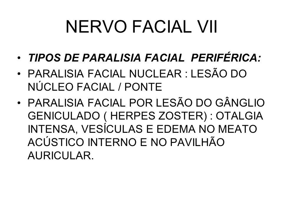 NERVO FACIAL VII TIPOS DE PARALISIA FACIAL PERIFÉRICA: PARALISIA FACIAL NUCLEAR : LESÃO DO NÚCLEO FACIAL / PONTE PARALISIA FACIAL POR LESÃO DO GÂNGLIO