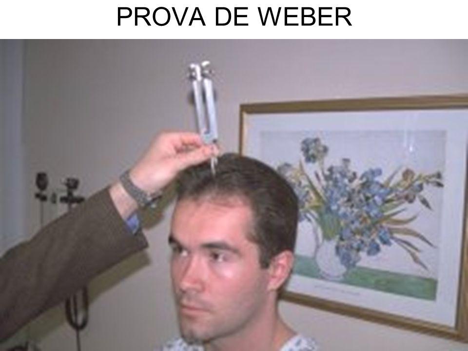PROVA DE WEBER